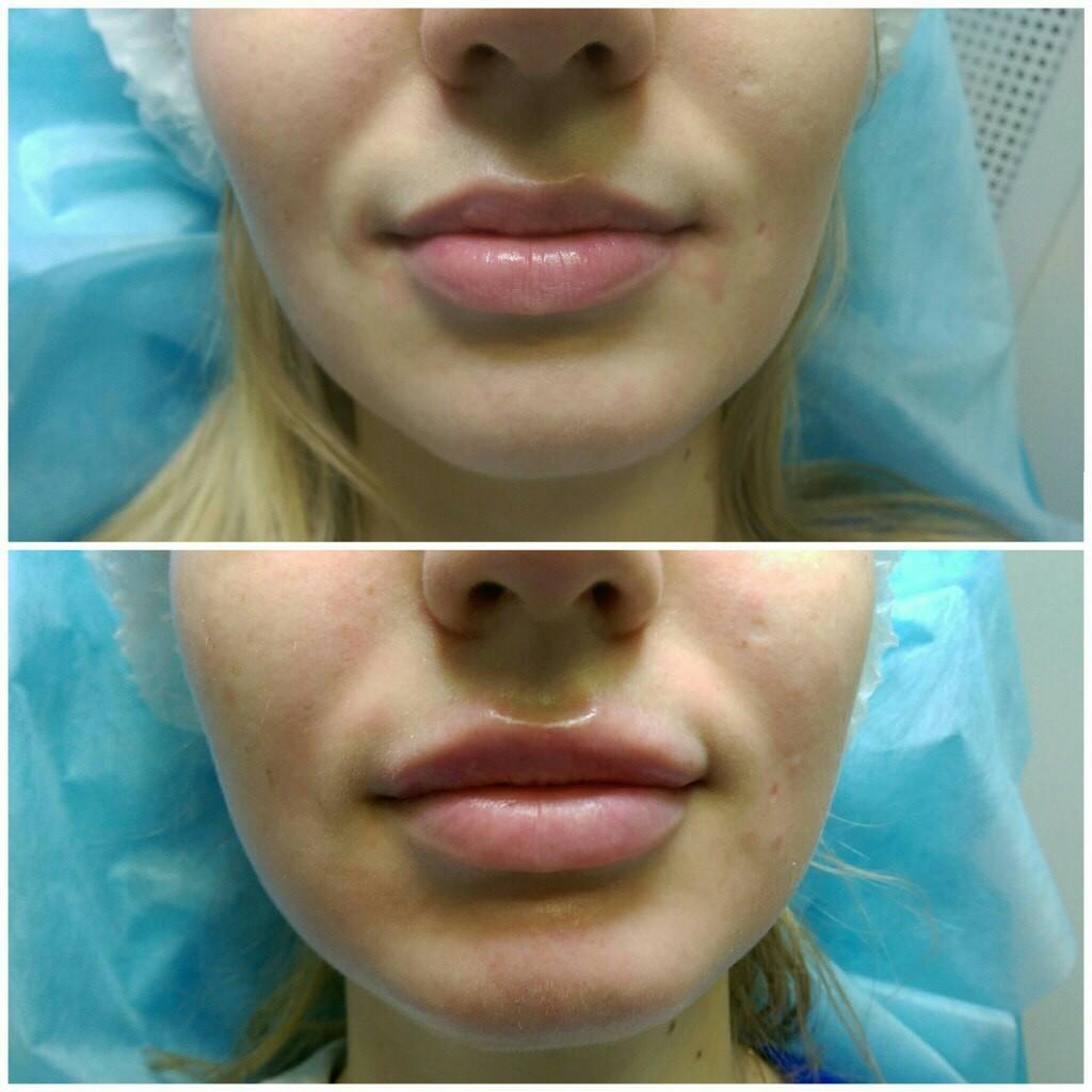 После увеличения губ чем пользоваться