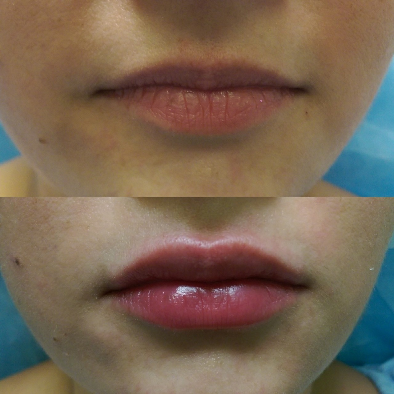 Безопасное увеличение губ.
