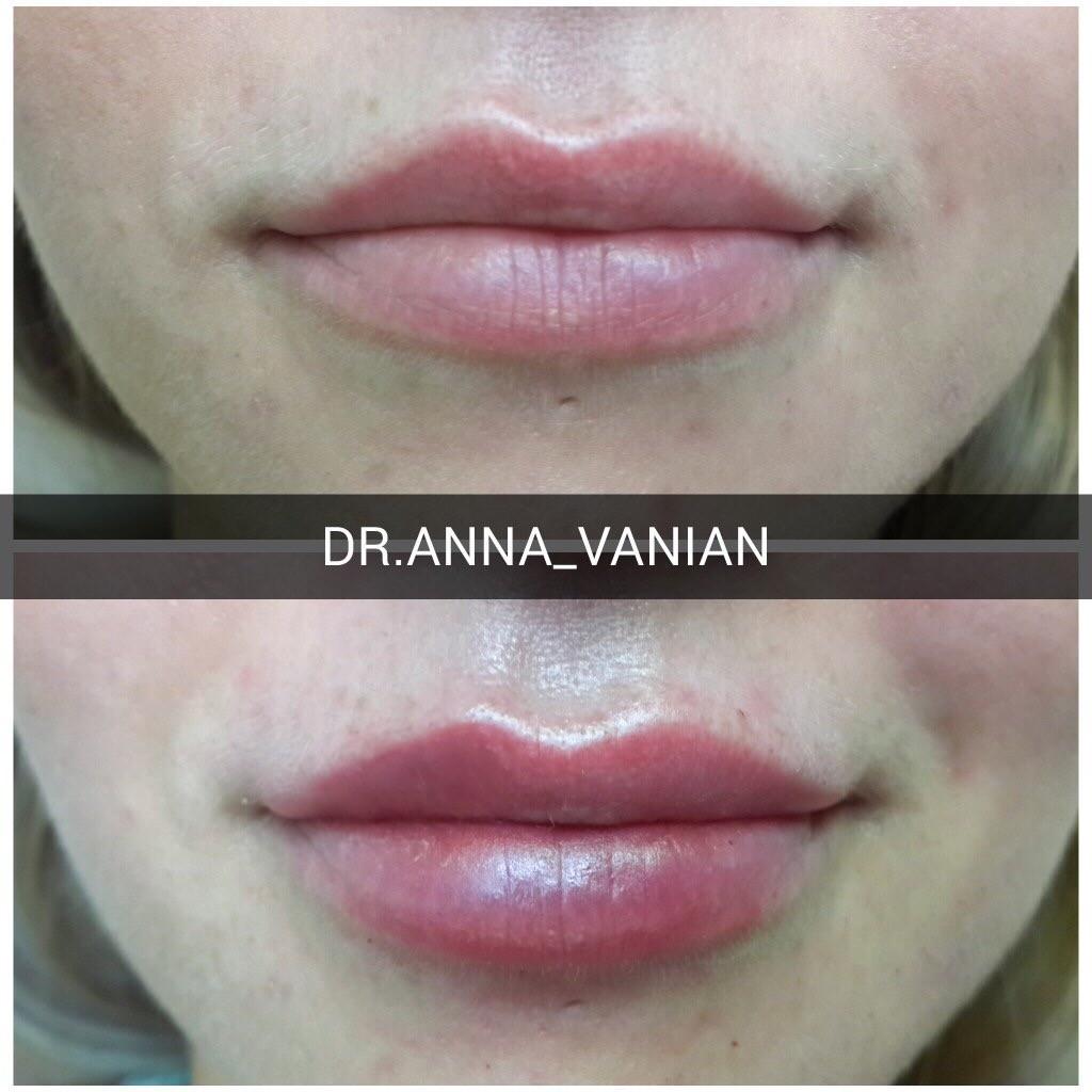 Принцесс волюм губы фото до и после 3