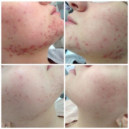 Фото до и после лечения дерматологических заболеваний