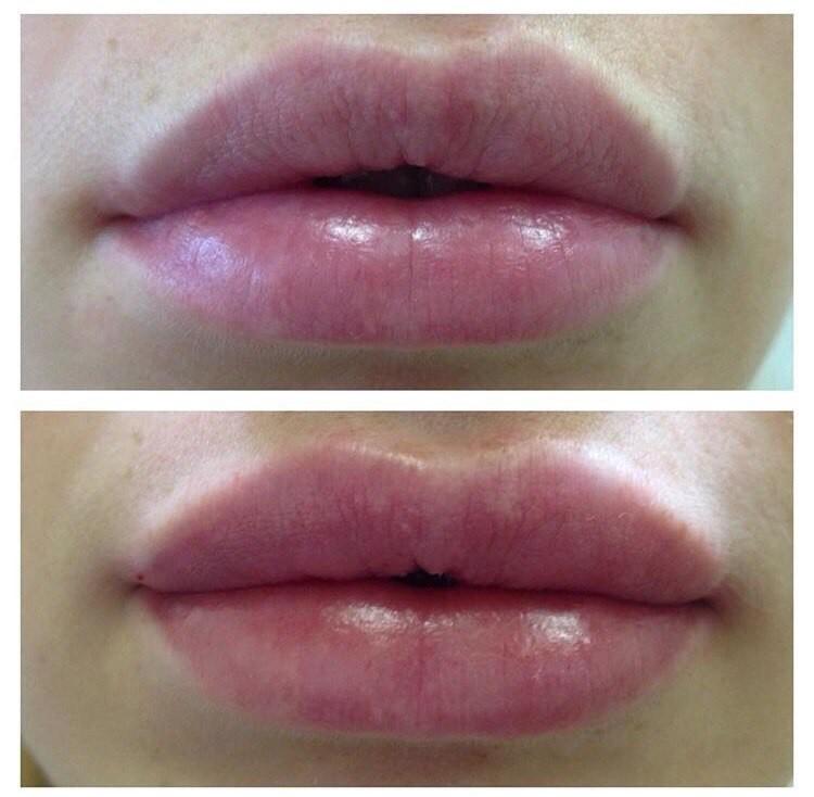 Surgiderm отзывы губы