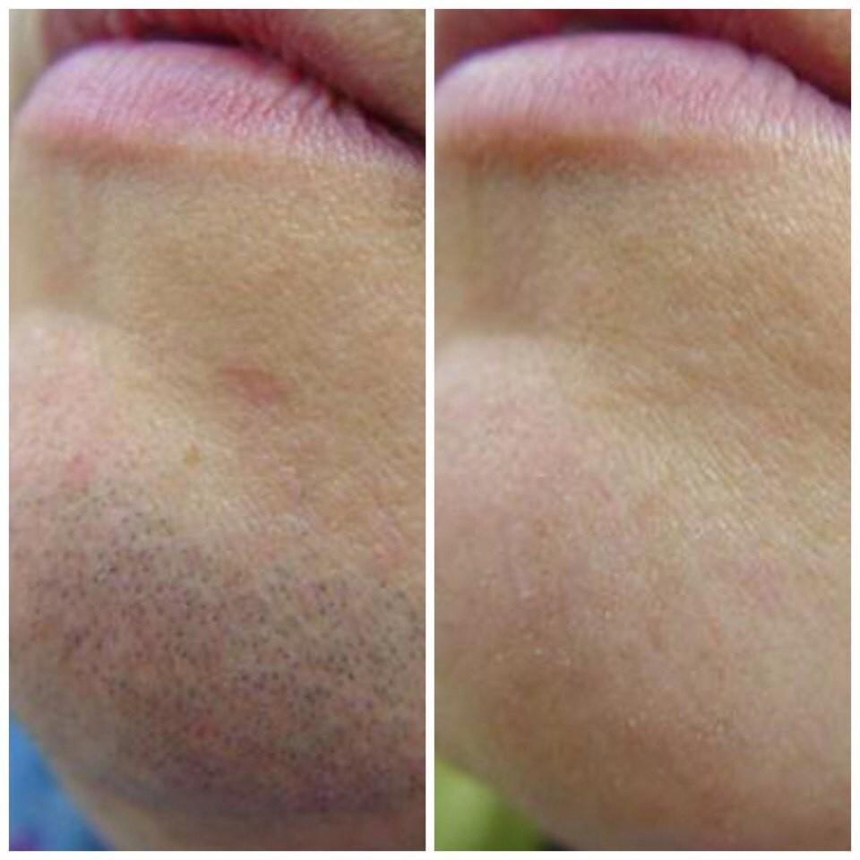 Лазерная эпиляция верхней губы: отзывы об эффективности процедуры и советы, как подготовиться к эпиляции