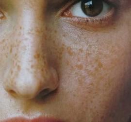 Пигмент акция кожи